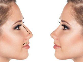 Как меняется нос после ринопластики в течении года